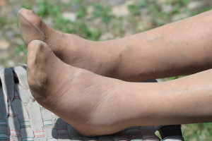 Causes-of-Varicose-Veins-and-Swelling-Concerns-300x200