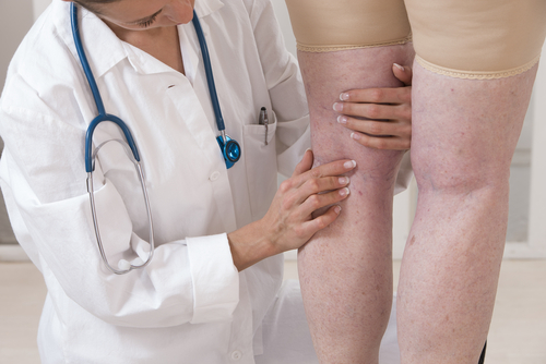 Pinpoint-the-Source-of-the-Varicose-Veins